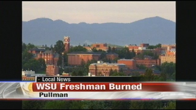 Attractive   The Washington State University Freshman Who Suffered Burns On His Legs  In His Pullman Part 22