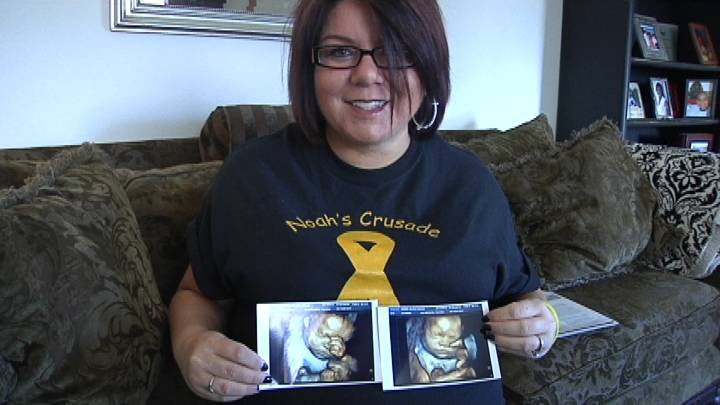 She just learned her yet to be born son will likely never walk. Prosser mom Alicia Jones is one of dozens of expecting moms in our region recently affected by a trend of birth defects.