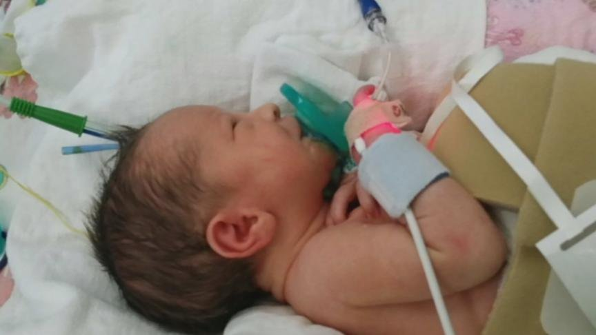 She's only three months old, and a Yakima baby has already been through more than many will endure in a lifetime.
